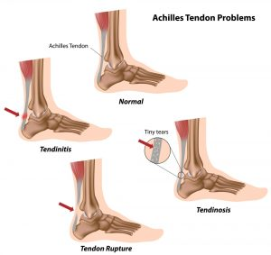 achilles tendons: ankle physiotherapy