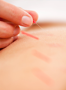 acupuncture for athletes boosting performance