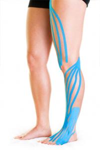 k-tape on leg: kiesiology taping harpenden