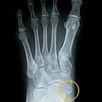 What is Accessory Navicular Syndrome?