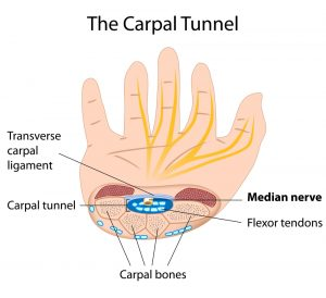 carpal tunnel diagram: wrist and hand physiotherapy