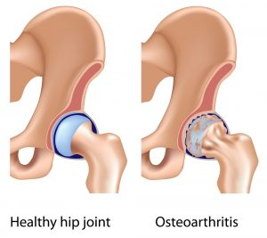 hip joint diagram: hip physiotherapy