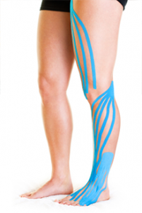 k-tape on leg: kiesiology taping harpenden