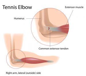 tennis elbow diagram: elbow physiotherapy